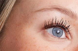 Trockene Haut unter den Augen bekämpfen.