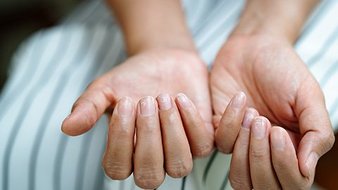 Frau mit brüchigen Nägeln