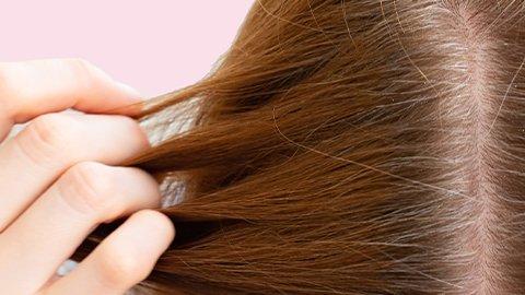 Frau mit trockener Kopfhaut