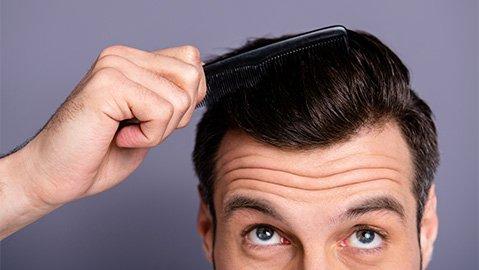 Mann mit trockener Kopfhaut