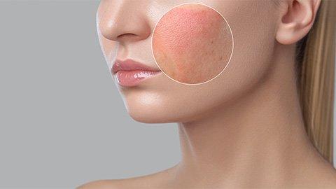 Frau mit Hautrötungen im Gesicht