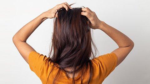 Frau kratzt wegen trockener Kopfhaut